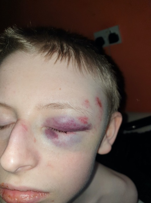 Main image for Police look into alleged assault on autistic teen